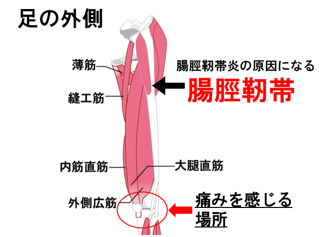 腸脛靭帯炎の痛む場所